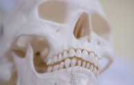 Cranio-facial reconstruction – should we extract or retain wisdom teeth present in a fracture line?